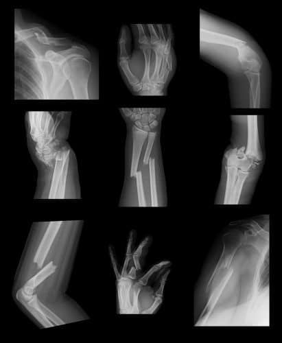 Not All Broken Bones Are the Same: Learn How to Get a Fair Settlement for Your Broken Bone Injury