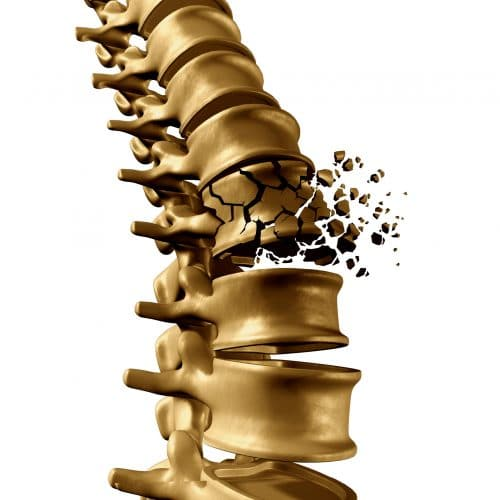 The Potential Complications of a Fractured Vertebrae Are Very Serious
